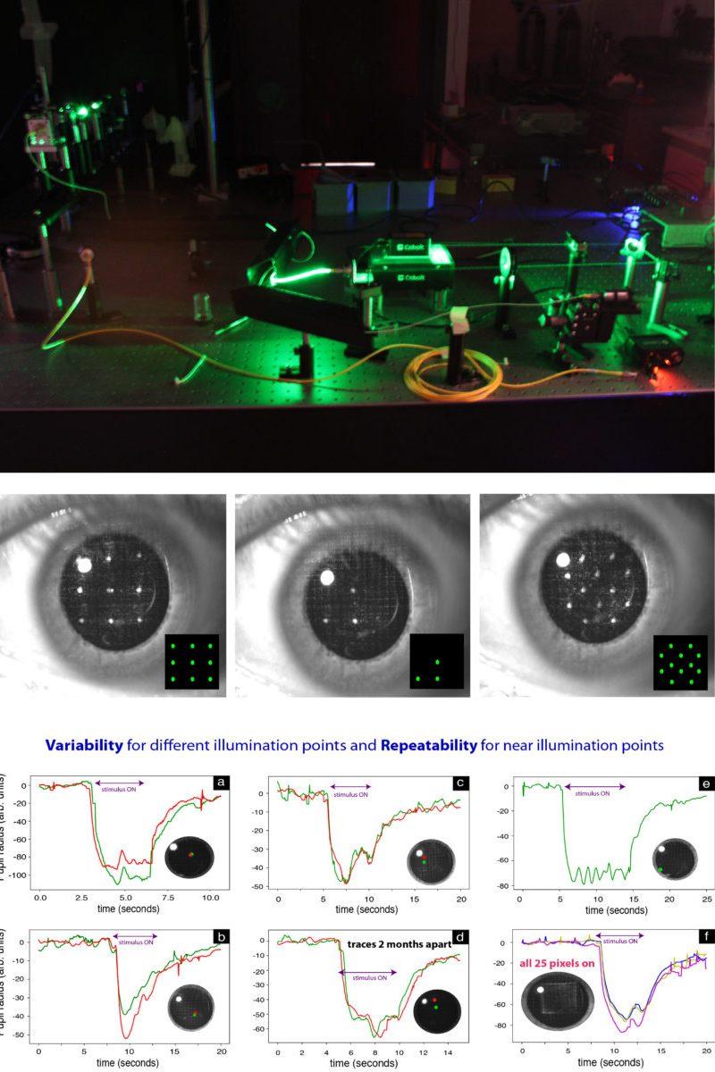 pupillometry